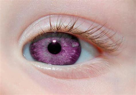 imagenes de ojos naturales 201 verdade que existem pessoas com a 237 ris na cor roxa