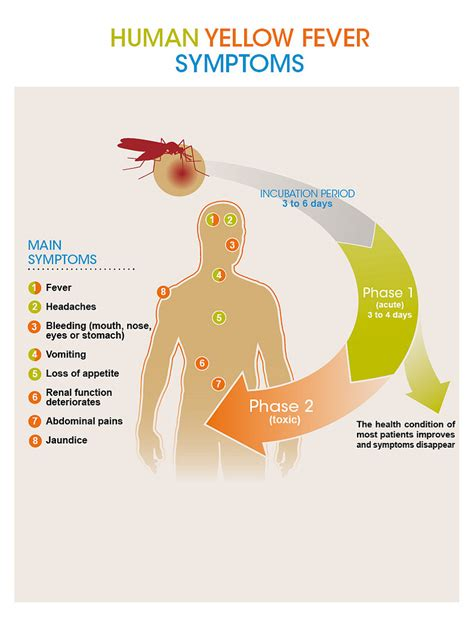 fever symptoms human yellow fever symptoms copyright sanofi pasteur file flickr