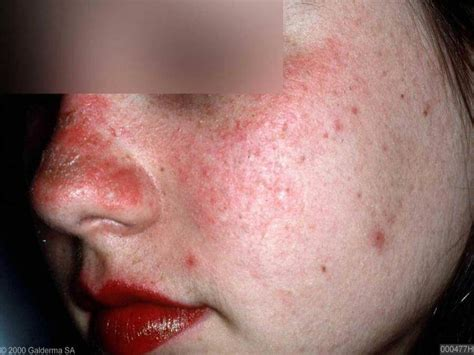 systemische lupus erythematosus sle huidarts