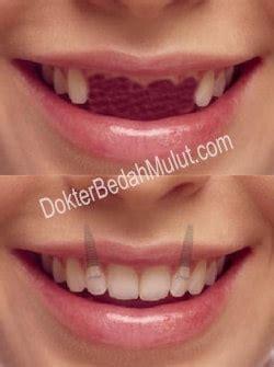 berapa harga dental implant untuk 4 gigi depan atas yang berjajar bedah mulut