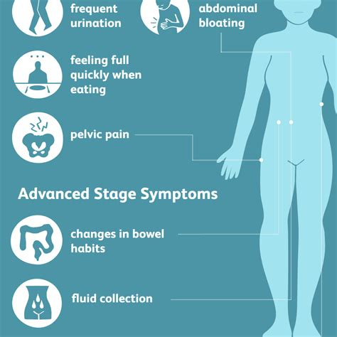 ovarian cancer signs symptoms  complications