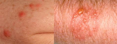 allergic reaction to bed bug bites pictures bed bug bites bed bug exterminator pro