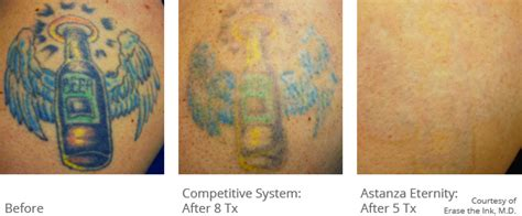 before and after laser tattoo removal astanza removal before after photos