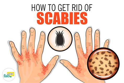 how to get rid of scabies with home remedies fab how