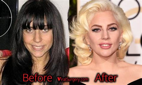 jessica robertson surgery lady gaga plastic surgery nose job fillers before and