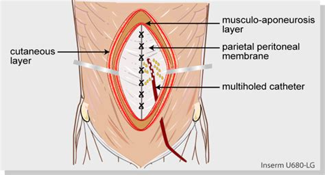 back pain after c section epidural epidural c section narbe wundheilung wikipedia