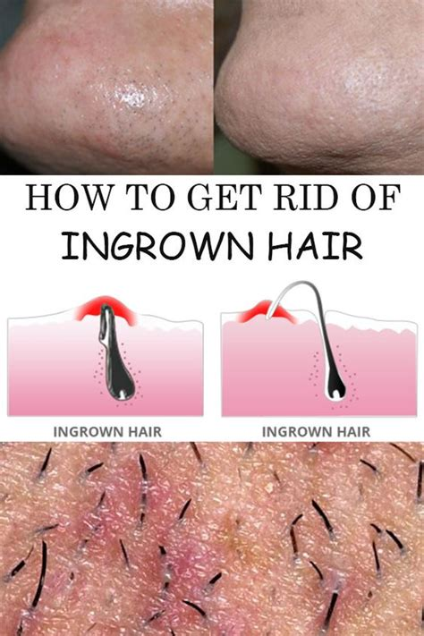 How To Treat Ingrown Hairs In The Chin | smooth hair and awesome on pinterest