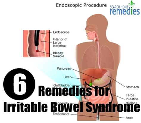 herbal remedies for irritable bowel herbal