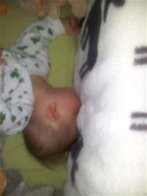 Kopf Total 252 Berstreckt Beim Schlafen M 228 Rz 2012 Babyclub