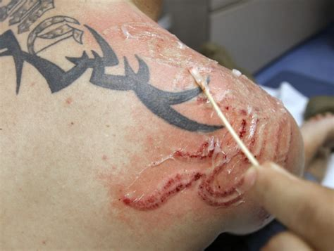 tattoo removal in richmond va think before you ink removal costly