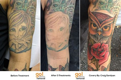 easy tattoo removal after their forearm tattooed this client realized