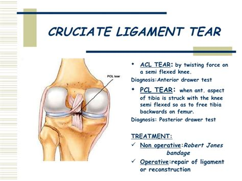 Anterior Drawer Knee by The Knee Joint