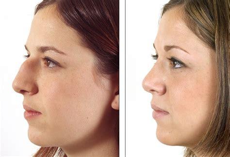 nose plastic surgery rhinoplasty