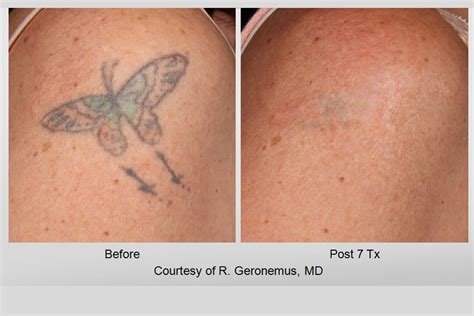laser tattoo removal aftercare instructions laser removal gallery picosure inklifters
