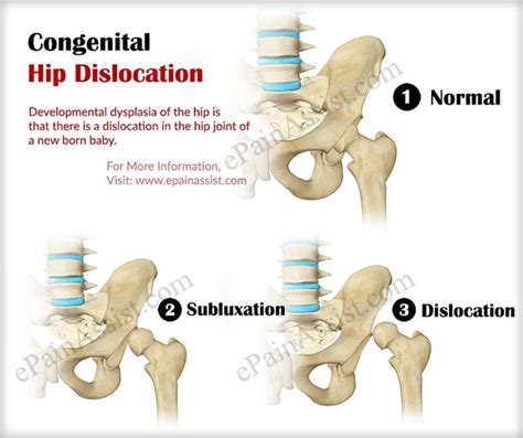 congenital hip dislocation or developmental dysplasia of