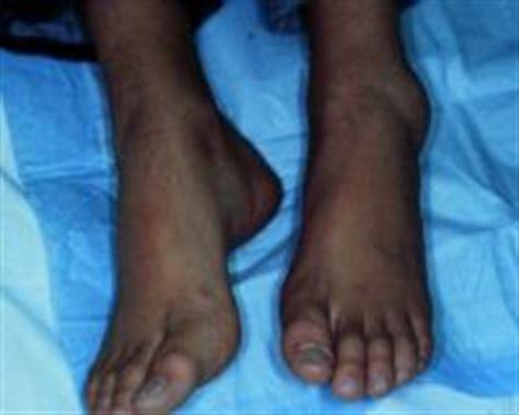 ayak bilegi burkulmalari uzmantv