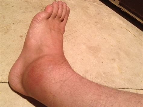 sprained ankle kt taping los angeles nelson fitness
