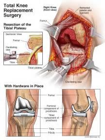 Pain In Back Of Knee After Knee Replacement Surgery by The Total Knee Replacement Attorneys Kassel Mcvey