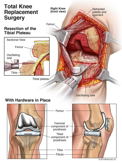 total knee replacement diagram total knee replacement surgery error lawyer in south carolina