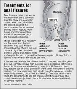 information graphic about fissures treatments and