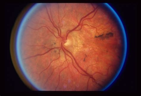 pattern dystrophy of the retinal pigment epithelium pattern dystrophy retina image bank