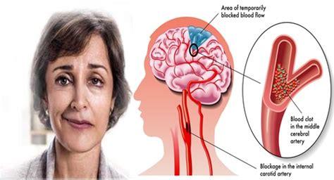 Qnc Jelly Gamat Untuk Stroke obat herbal sembuhkan stroke ringan sai tuntas