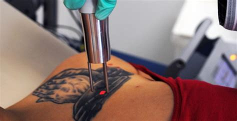 how long between laser tattoo removal sessions laser removal