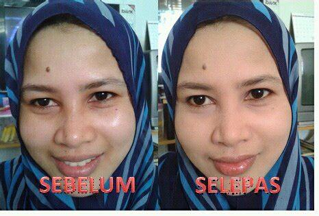 Promo Ceeam Temulawak Widya Bpom Dan Promo Dscosme Lainnya distributor collagen original 100 vloei shop