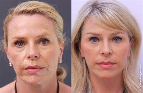 Facelift Vorher Nachher by Vorher Nachher Bilder Facelift Phenol Peeling