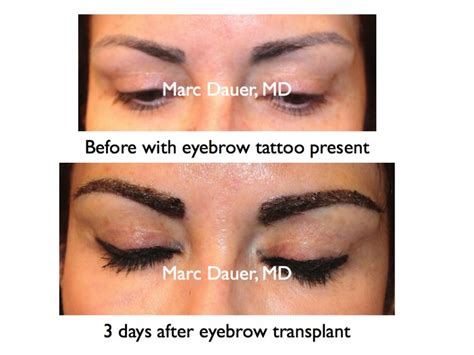 hair transplant cost melbourne hair transplant sydney cost hairstyle gallery