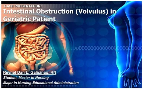 Lu Obstruction intestinal obstruction volvulus in geriatric patient