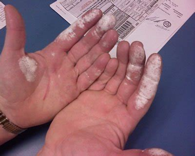 can i use hydrogen peroxide on my would skin catch if you rubbed 3 hydrogen peroxide or a similarly reactive