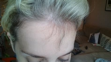 hair growth for women over 50 gallery of short hairstyles for women over 50 that avoid