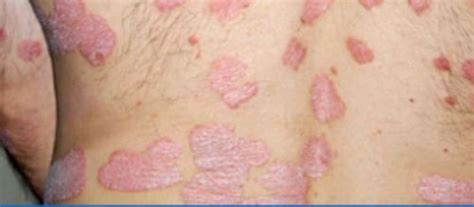 powered by mybb infections in the back skin diseases www pixshark com images galleries with a