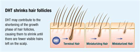 male pattern hair loss testosterone men hair loss lewisburg plastic surgery and dermatology