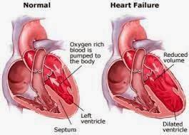 Asuhan Keperawatan Gangguan Perkemihan Nursalam asuhan keperawatan gagal jantung kiri asuhan keperawatan