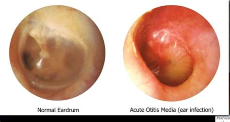 inner ear infection normal versus infected middle ear view of the tm ear