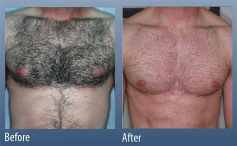 chest tattoo removal before after hair removal main line for laser surgery in ardmore pa