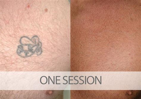 first session tattoo removal before and after laser removal results eraditatt