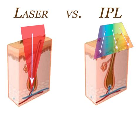 diode laser ipl tria laser reviews tria 4x tria hair removal find my home laser