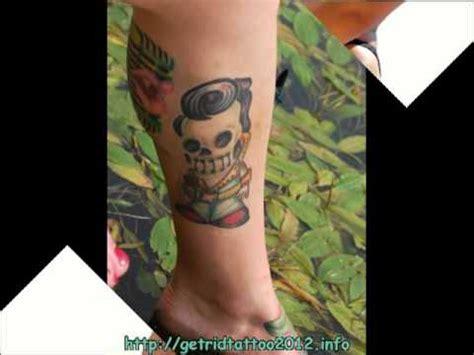 youtube tca tattoo removal tattoo tca removal