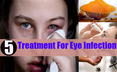 how to treat eye infection at home 5 eye infection treatments how to treat eye infection naturally home