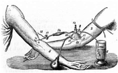 Blood 1st 150 M the twisted history of blood transfusion