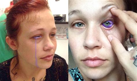 canadian model catt gallinger is recovering after eye
