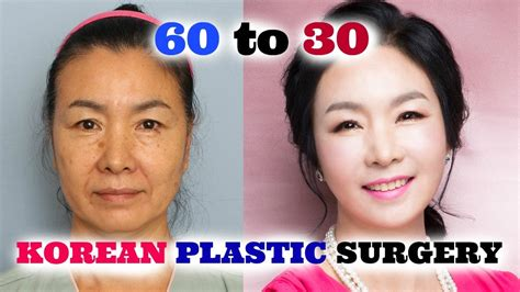 8 Reasons To Avoid Cosmetic Surgery by My Did Plastic Surgery In Korea Part 2 Sunnydahye