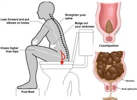 Can Pregnancy Cause Stools by De 20 B 228 Sta Id 233 Erna Om Pregnancy Constipation P 229