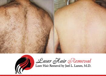 ditch the neck hair laser hair removal for plastic the best back hair removal for the best back hair removal for laser hair removal of