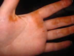 rust colored stains on rust colored stains on pics cafemom