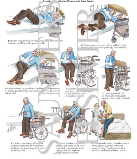 bed to chair transfer procedure transfer from bed to wheelchair after stroke