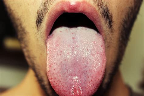 White Tongue Detox by Help What Can My Tongue Tell You At Candida